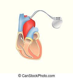 Herzschrittmacher in der Arbeit. Herzanatomie Querschnitt mit funktionierendem implantierbarem Kardioverter Defibrillator.