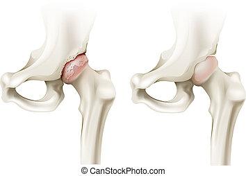 Hip Arthritis.