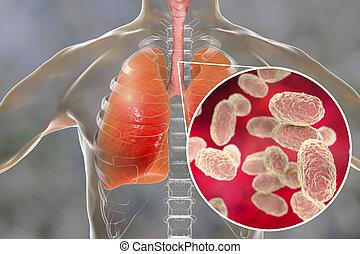 Hustenbakterien in der menschlichen Luft.