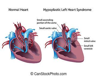 Hypoplastisches linkes Herz-Syndrom