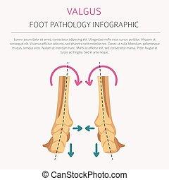 infographic., defekt, verformung, desease, valgus, fuß, varus, medizin