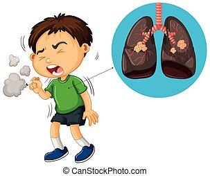 Junge rauchende Zigarette und ungesunde Lungendiagramm.