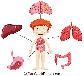 junge, verschieden, ausstellung, krankheit, diagramm, zubehörteil, organe