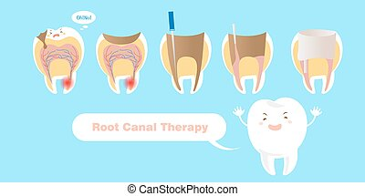 kanal, therapie, wurzel, zahn