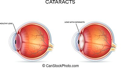 katarakte