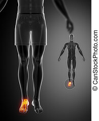 knöchel, x--ray, schwarz, beinen ultraschallaufnahme
