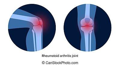 knie, arthritis, gelenk