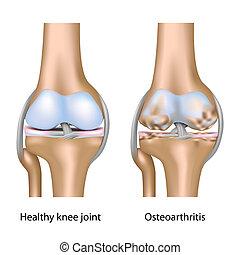 knie, osteoarthritis, eps10, gelenk