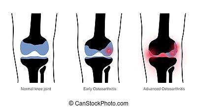 kniegelenk, arthritis