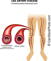 Knochenarterie, Atherosklerose.