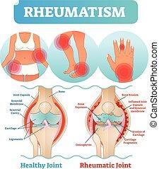 koerper, beschädigt, joints., rheuma, medizinische abbildung, diagramm, vektor, gesundheit, plakat, knie, erosion, schmerzhaft, sorgfalt