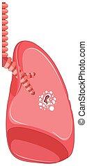 koerper, tuberkulose, menschliche