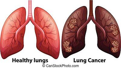 koerperbau, lunge, menschliche , bedingung
