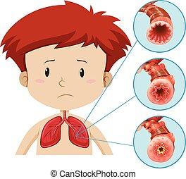koerperbau, problem, lunge, menschliche