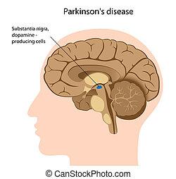 krankheit, parkinson's, eps8