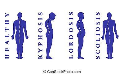 krankheiten, curvature., defects., lordose, symptom., skoliose, medizin, illustration., spine., krankheit, spinal, vektor, mißbildung, koerper, infographic., zurück, haltung, diagnostisch, types., kyphosis.