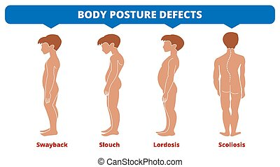 krankheiten, defects., lordose, symptom., skoliose, medizin, illustration., swayback, spine., krankheit, spinal, knaben, vektor, mißbildung, koerper, infographic., haltung, diagnostisch, types., silhouette., slouch.
