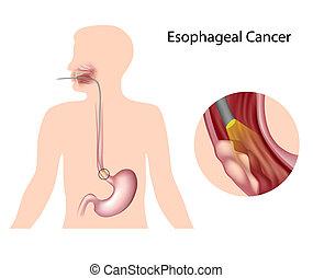 krebs, esophageal, eps10