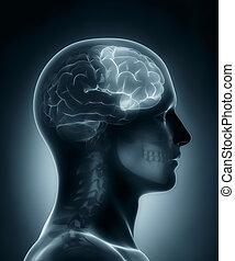 lappen, frontal, medizinische röntgenaufnahme, überfliegen