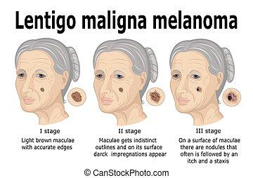 Lentigo maligna melanoma.