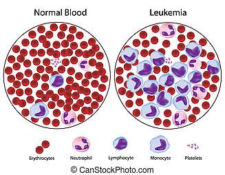 Leukämisch gegen normales Blut