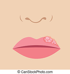 lippe, herpes