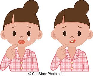 lippen, krankheit