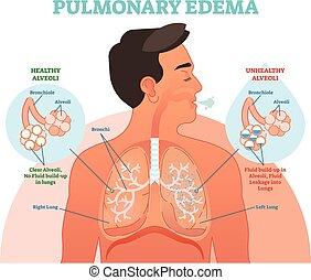 Lungenödem, Lungenproblem, Vektordiagramm