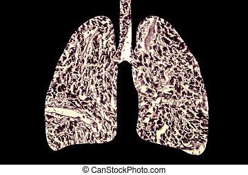 lungen, abbildung, begriff, smoker's, medizinische krankheit, lunge, begriffliches abbild, 3d