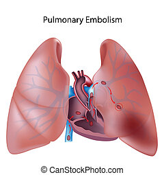 lungen, eps10, embolie
