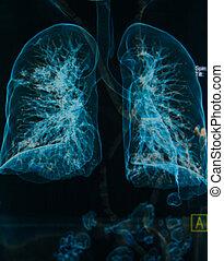 lungen, röntgenbilder, bild, brust, unter, 3d