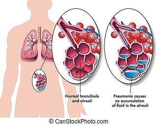 Lungenentzündung.