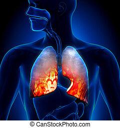 Lungenentzündung - Lungenentzündung.