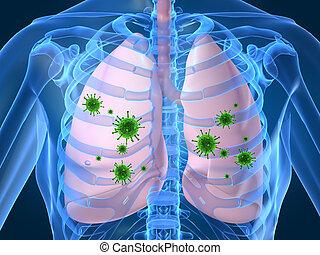 Lungeninfektion