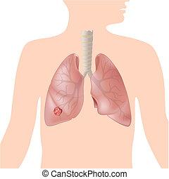 Lungenkrebs, Eps10