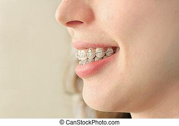 Mädchen lächelt mit Zahnspangen