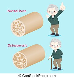 mann, altes , osteoporose