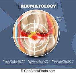 medizinprodukt, reumatology, 3d, abbildung, realistisch