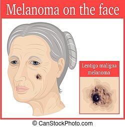 Melanoma auf der Wange.