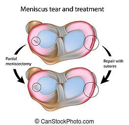 Meniscus-Träne und Operation, Eps8