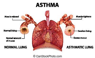 menschliche anatomie, asthma, diagramm