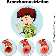 Menschliche Anatomie bronchoconstriction auf weißem Hintergrund.