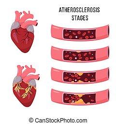 menschliche , atherosklerose, stages., herz