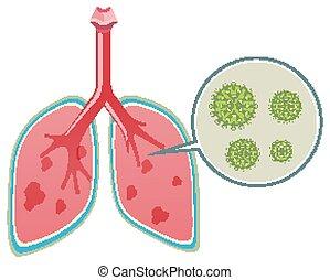 menschliche , ausstellung, coronavirus, diagramm, lungen