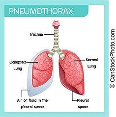 menschliche , karikatur, koerperbau, pneumothorax