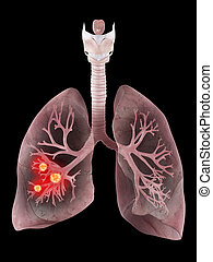 Menschliche Lunge und Bronchi.