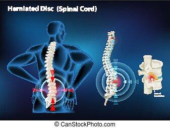 menschliche , scheibe, diagramm, vorgestanden abnormale körperöffnung, ausstellung