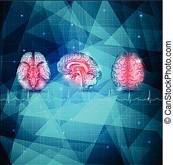 Menschliches Gehirn, detaillierte Anatomie
