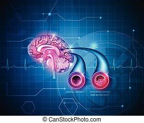 Menschliches Gehirn heilt Pflege