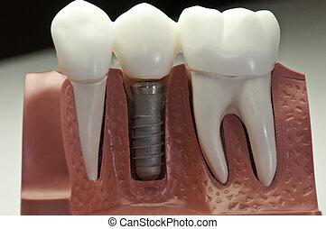 modell, dental, implantat, bedeckt